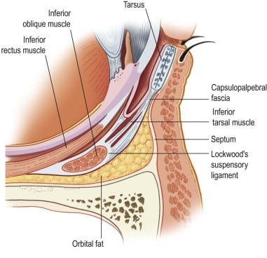 Lower Eyelid Fat Pads and relationship to Inferior Oblique Muscle