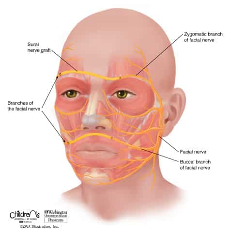 Sural Nerve Graft used as a Cross-Facial Nerve Graft in a patient with a facial palsy/paralysis