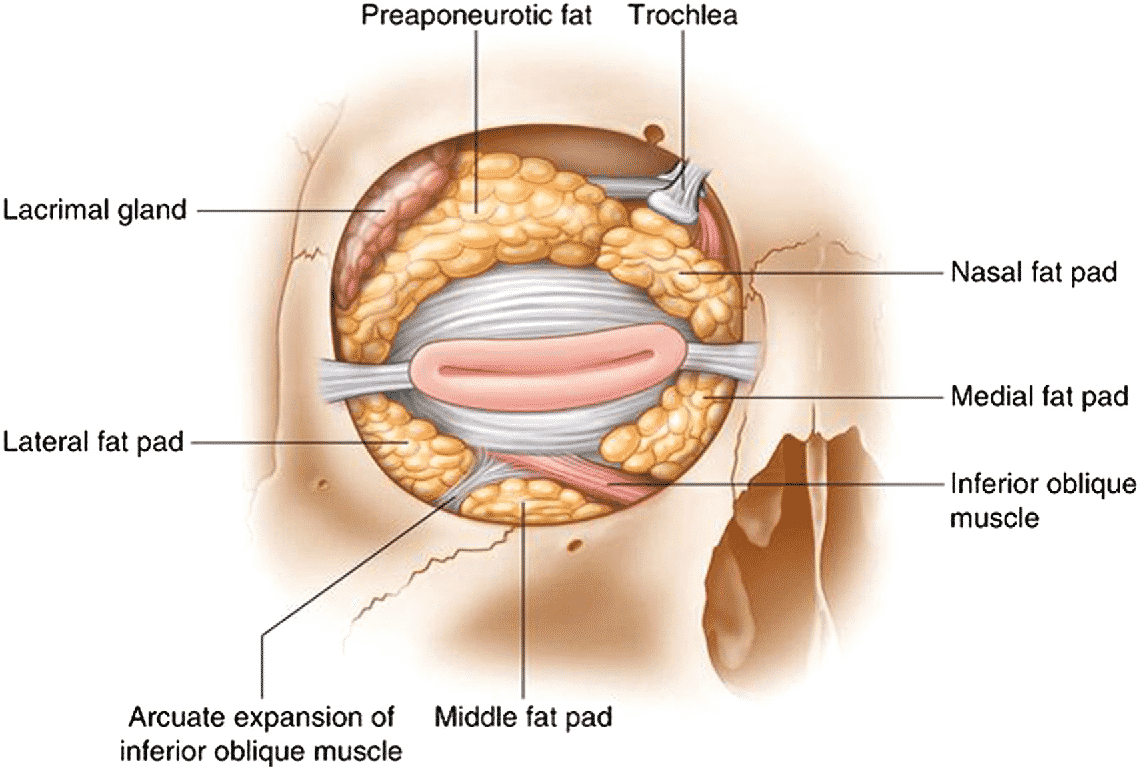 Fat Compartments of the Eyelid