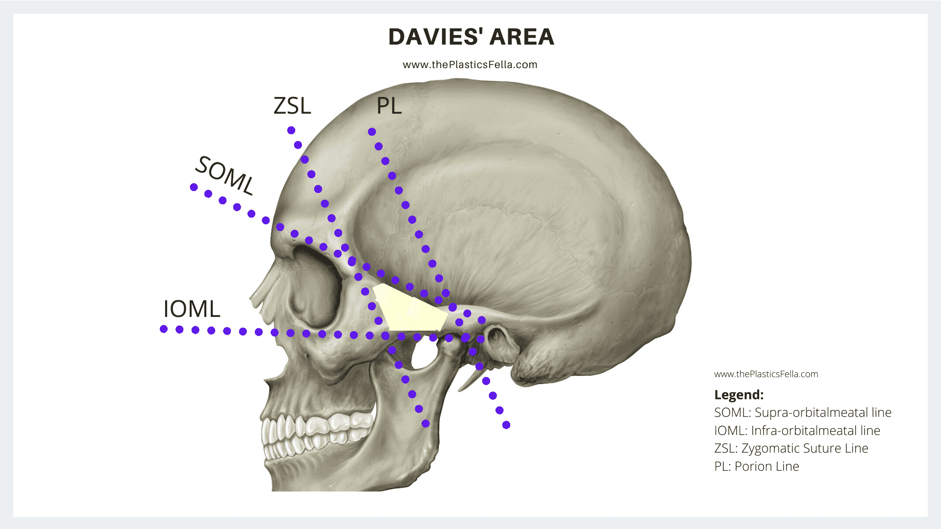 Distribution of the Temporal/Frontal Branch of Facial Nerve