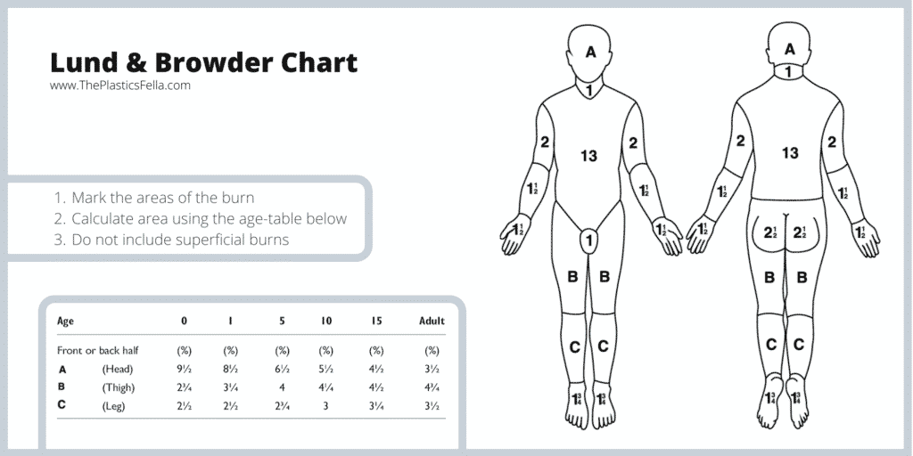 Lund and Browder Chart - Calculate Total Body Surface Area  Percentage (TBSA%) in Burns
