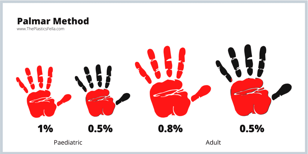 The Palmar Method use to calculate the total body surface area percentage of a burn