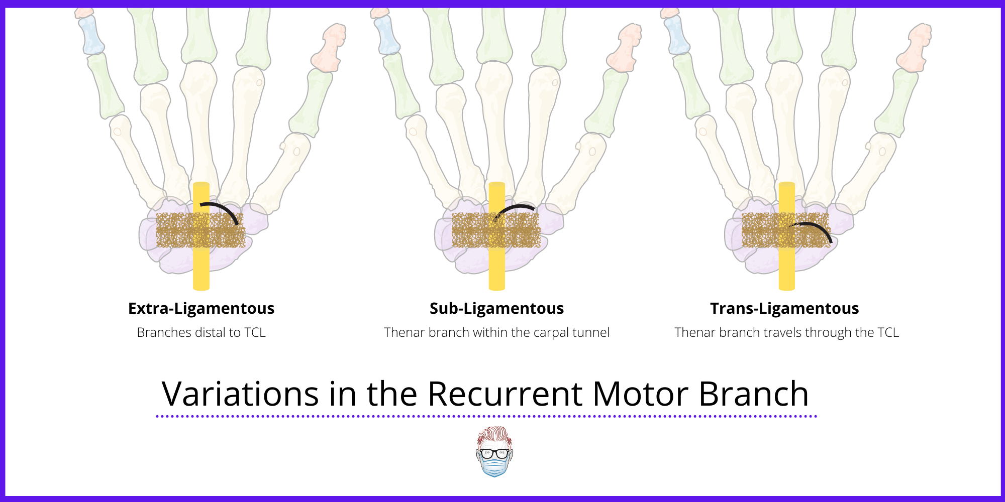 The Thenar Branch during carpal tunnel syndrome surgery