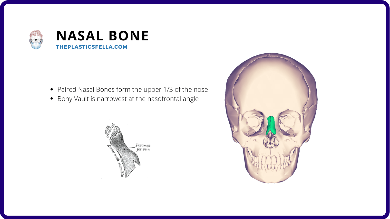 The location of the nasal bone in relation to other bones in the nose