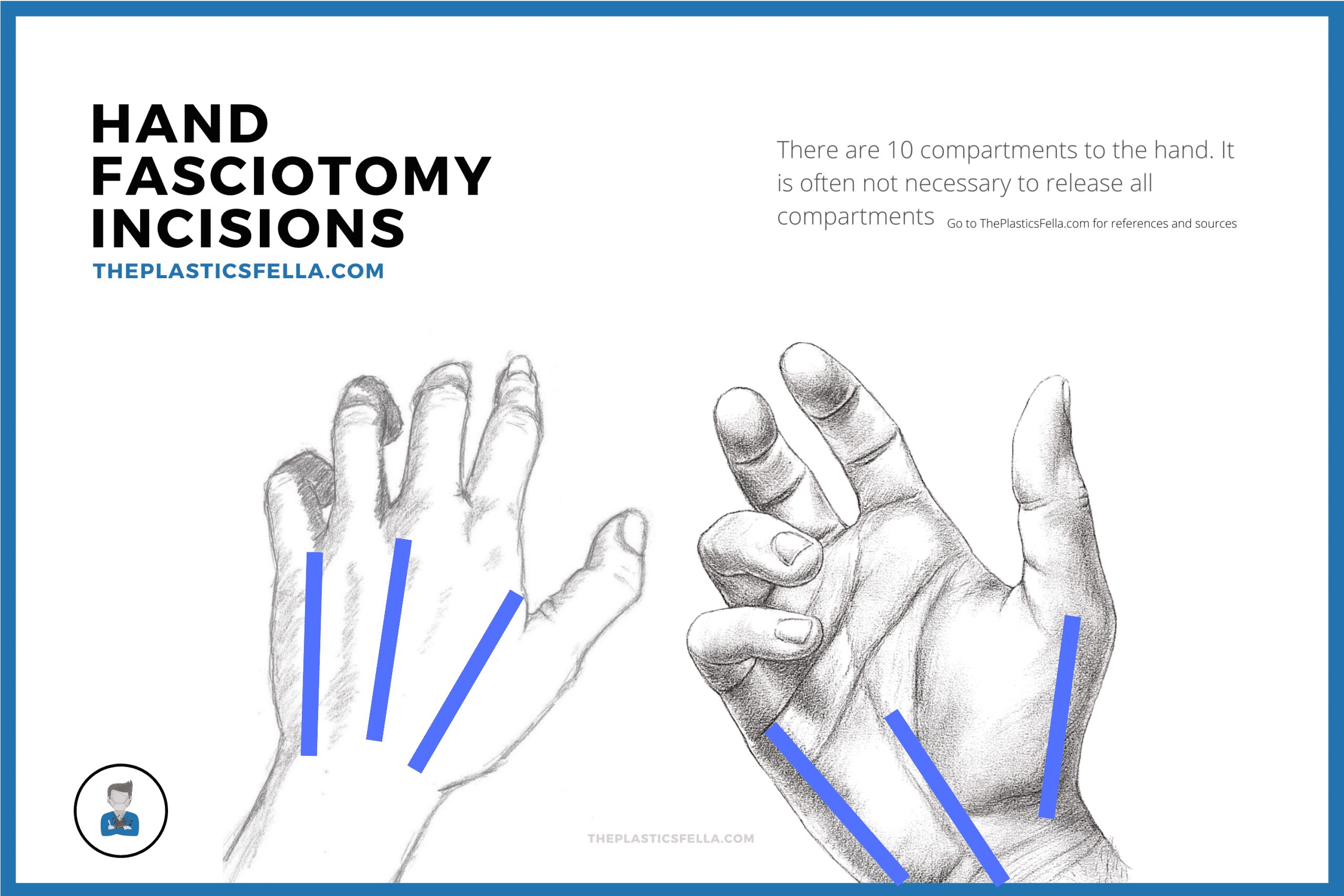 Surgical Incisions to decompress compartment syndrome of the hand