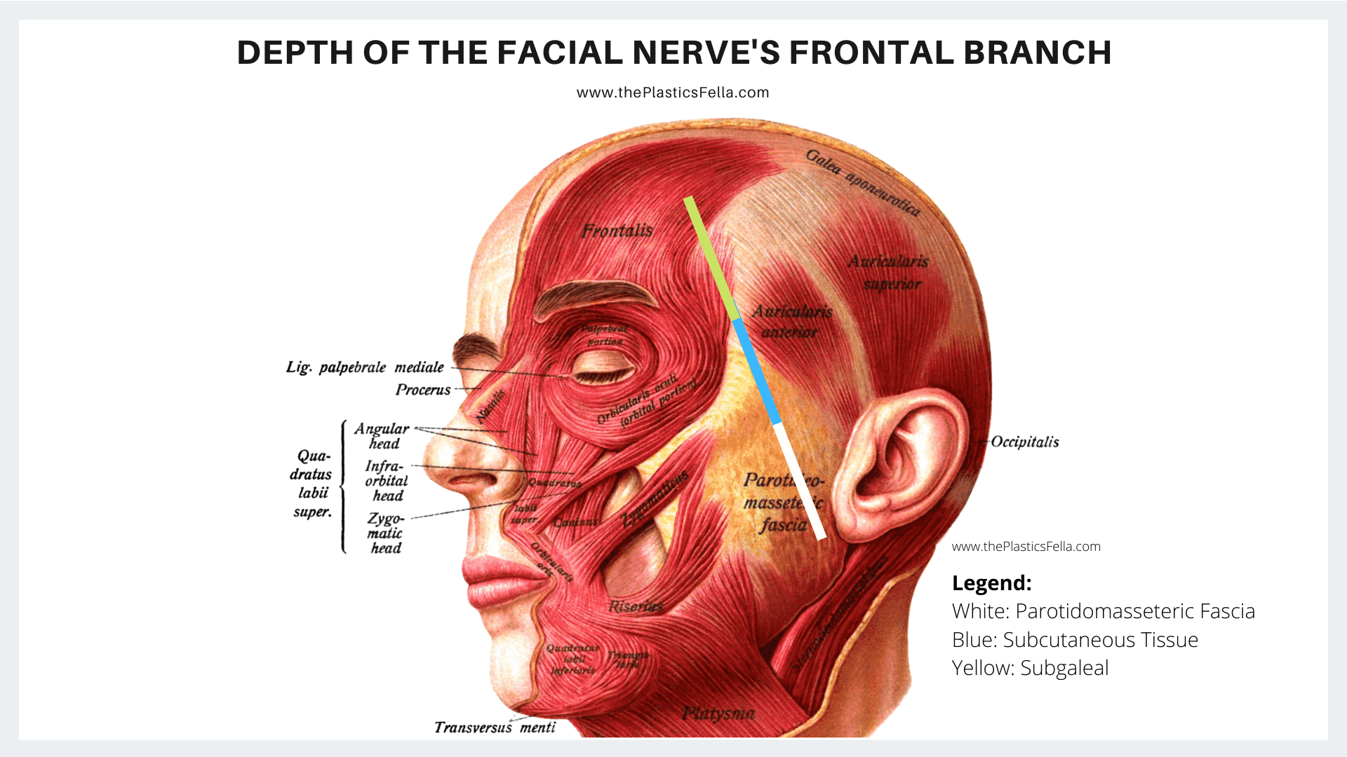 Depth and Layers of the Facial Nerve's Frontal/Temporal Branch through the parotidomasseteric fascia, subcutaneous tissue and subgaleal plan.