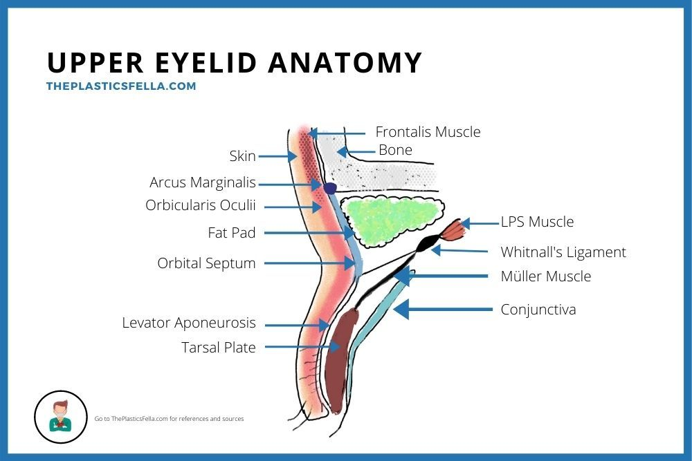 Upper Eyelid Anatomy Labelled Diagram with drawings of the anterior, posterior and middle lamella.
