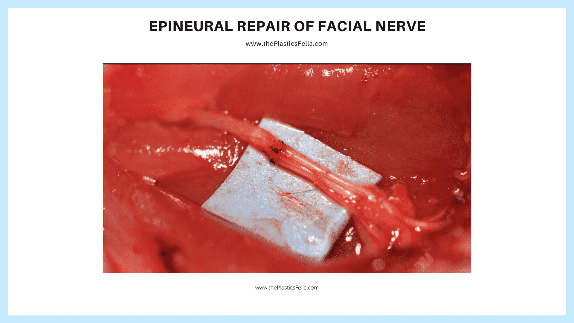 Epineural Repair in Treatment of Facial Nerve Palsy