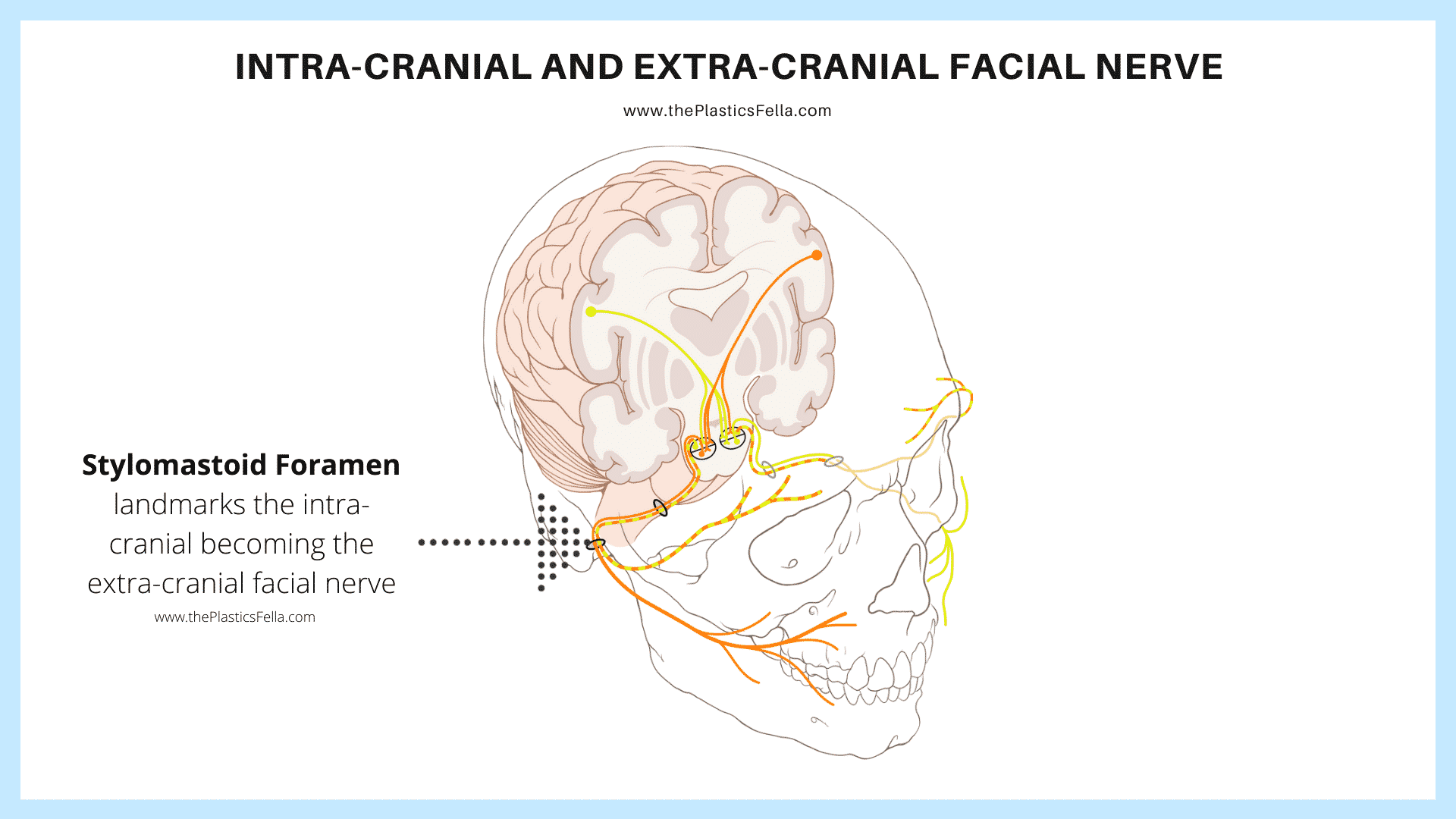Stylomastoid Foramen is the location for the intra-cranial facial nerve becoming extra-cranial.