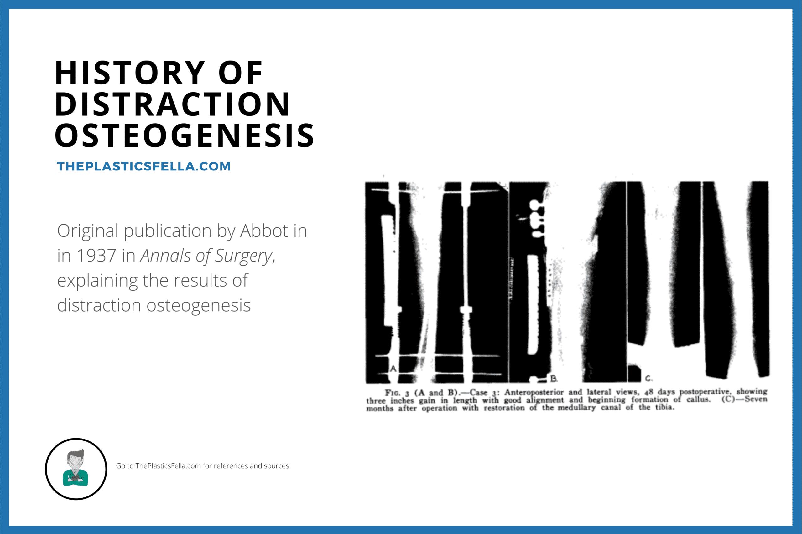 History of Distraction Osteogenesis, Ilizarov, Craniofacial