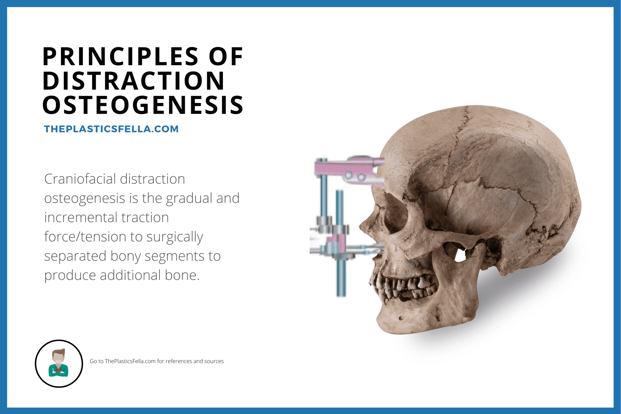 Principles of Craniofacial Distraction Osteogenesis