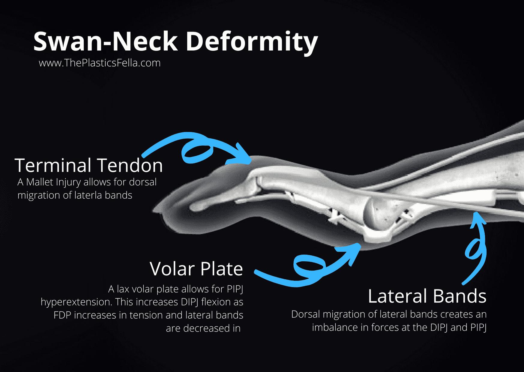 Anatomy of a Swan-Neck Deformity (vs Boutonnières deformity)