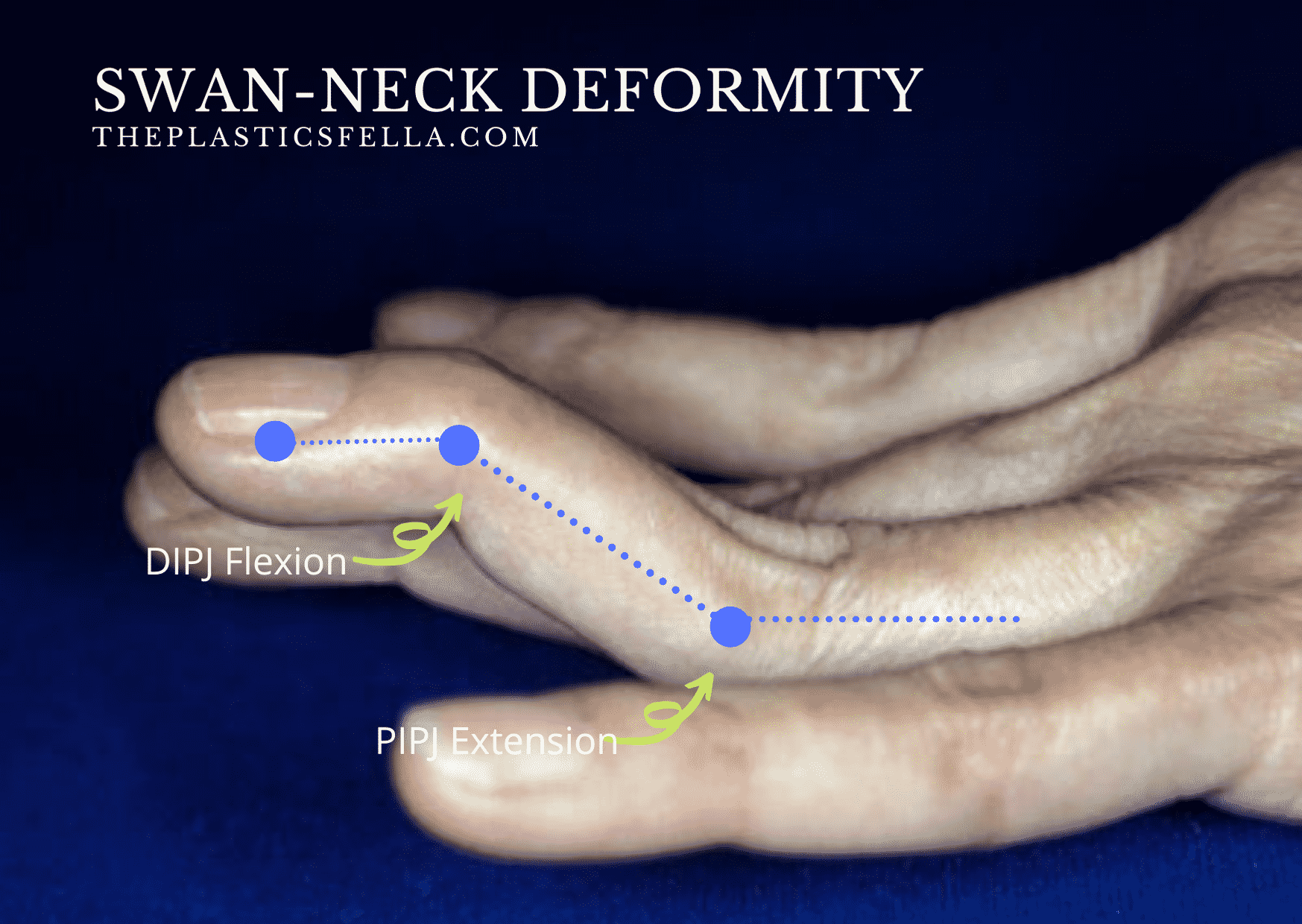 Signs of a Swan-Neck Deformity: DIPJ flexion, PIPJ hyperextension in a patient  with Rheumatoid Hands