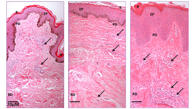 Histological and Morphological differences of Keloid, Hypertrophic and Normal scars