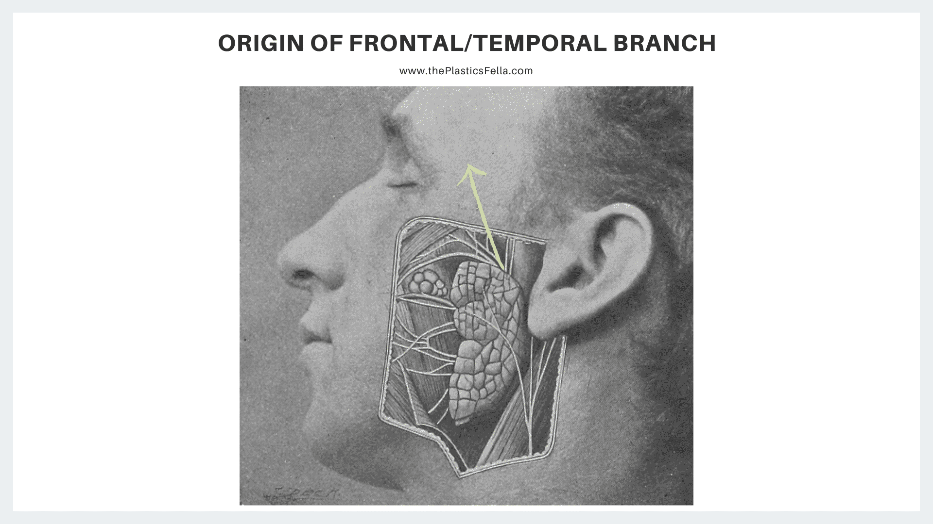 The frontal/temporal branch of the facial nerve arising from the superomedial aspect of the parotid gland.