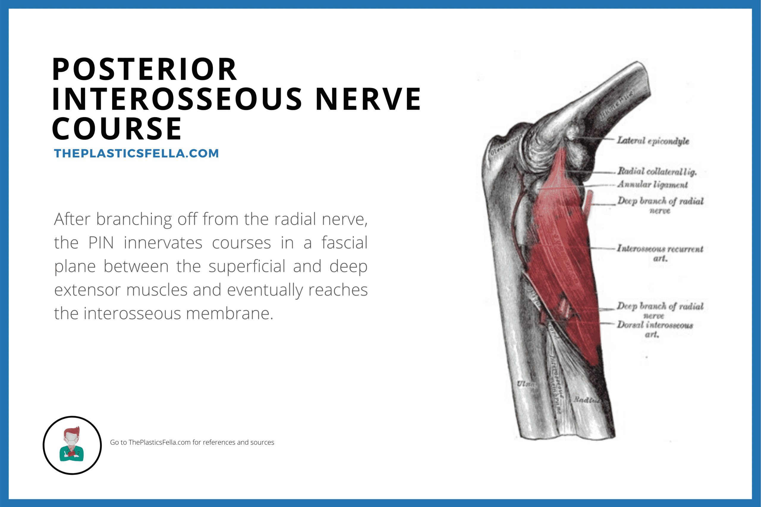 Anatomy of the Posterior Interosseous Nerve and it's course in the arm in causing Posterior Interosseous Nerve syndrome and palsy