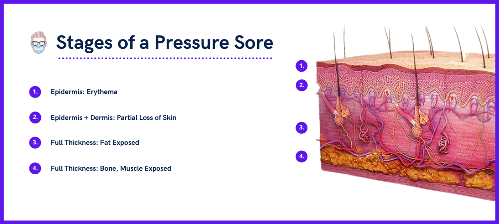 Stage 1, Stage 2, Stage 3, Stage 4, Unstageable Pressure Sore