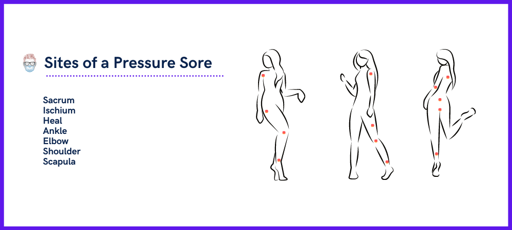 Sites and Location of a Pressure Sore