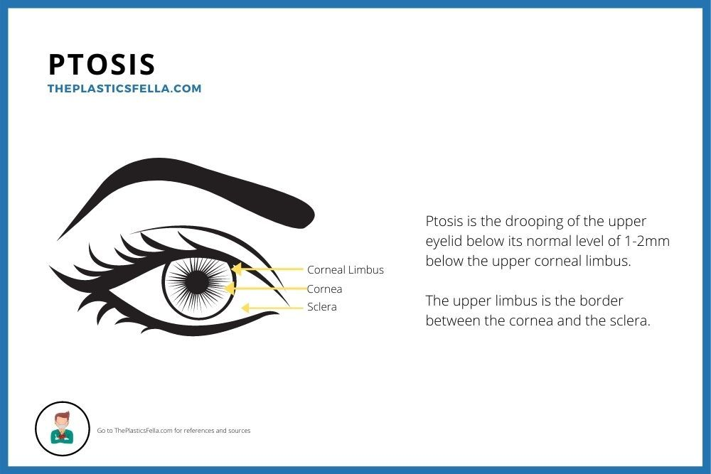 Ptosis is the drooping of the upper eyelid below its normal level of 1-2mm below the upper corneal limbus. This is a labelled drawing.