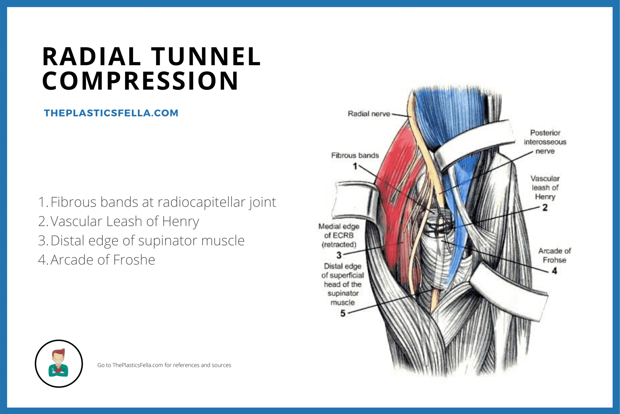 Sites of Radial Tunnel Compression and Entrapment in radial tunnel syndrome and Posterior Interosseous nerve palsy/syndrome.
