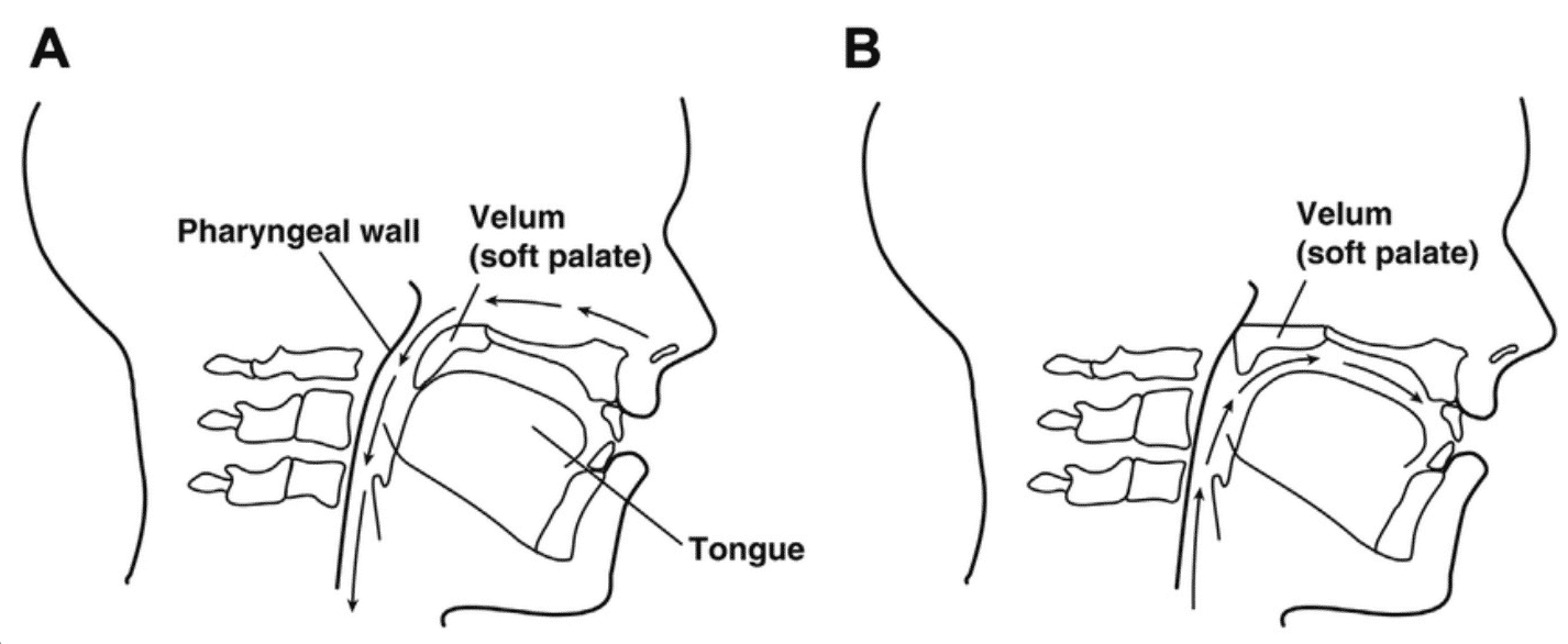 (A) Position of the velum during normal nasal breathing. (B) Normal velopharyngeal closure for speech. (C) A short velum that causes velopharyngeal insufficiency. (D) Poor movement of the velum caused by a neuromuscular disorder, which cause velopharyngeal incompetence