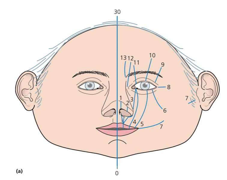 Tessier Soft Tissue Classification of Craniofacial Clefts
