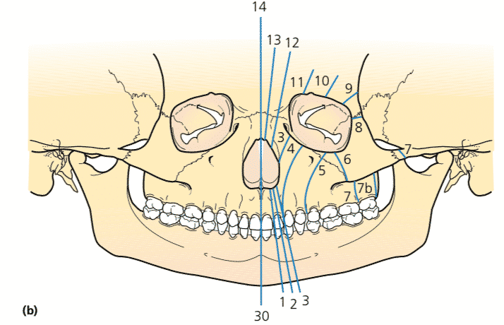 Tessier Bone Classification of Craniofacial Clefts