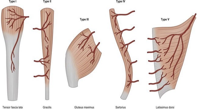 Visual illustration of the Mathes and Nahai Classification for muscle flaps