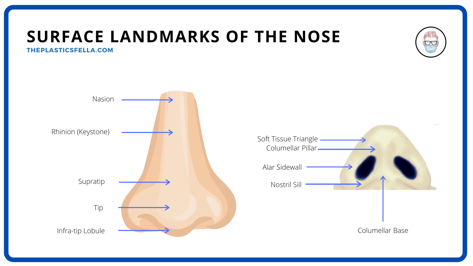 Clinical Anatomy of the External Nose and Surface Landmarks for Plastic Surgeons and Rhinoplasty