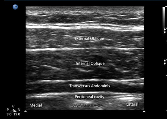 Direct visualization of TAP Block: Anaesthetic injected into the intramuscular plane adjacent transversus abdominis (arrows)