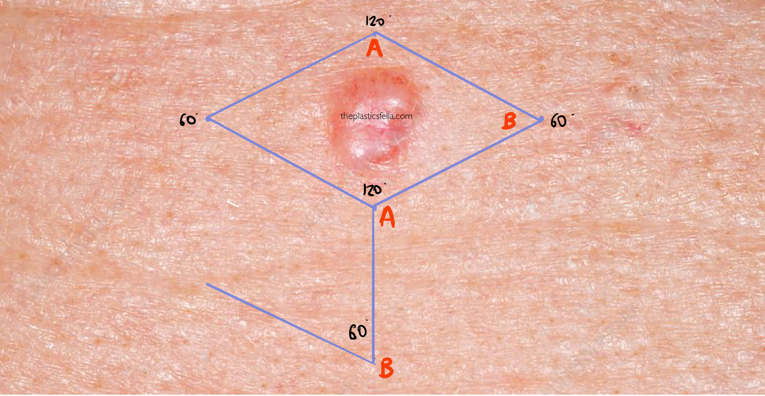 Rhomboid flap drawing on face