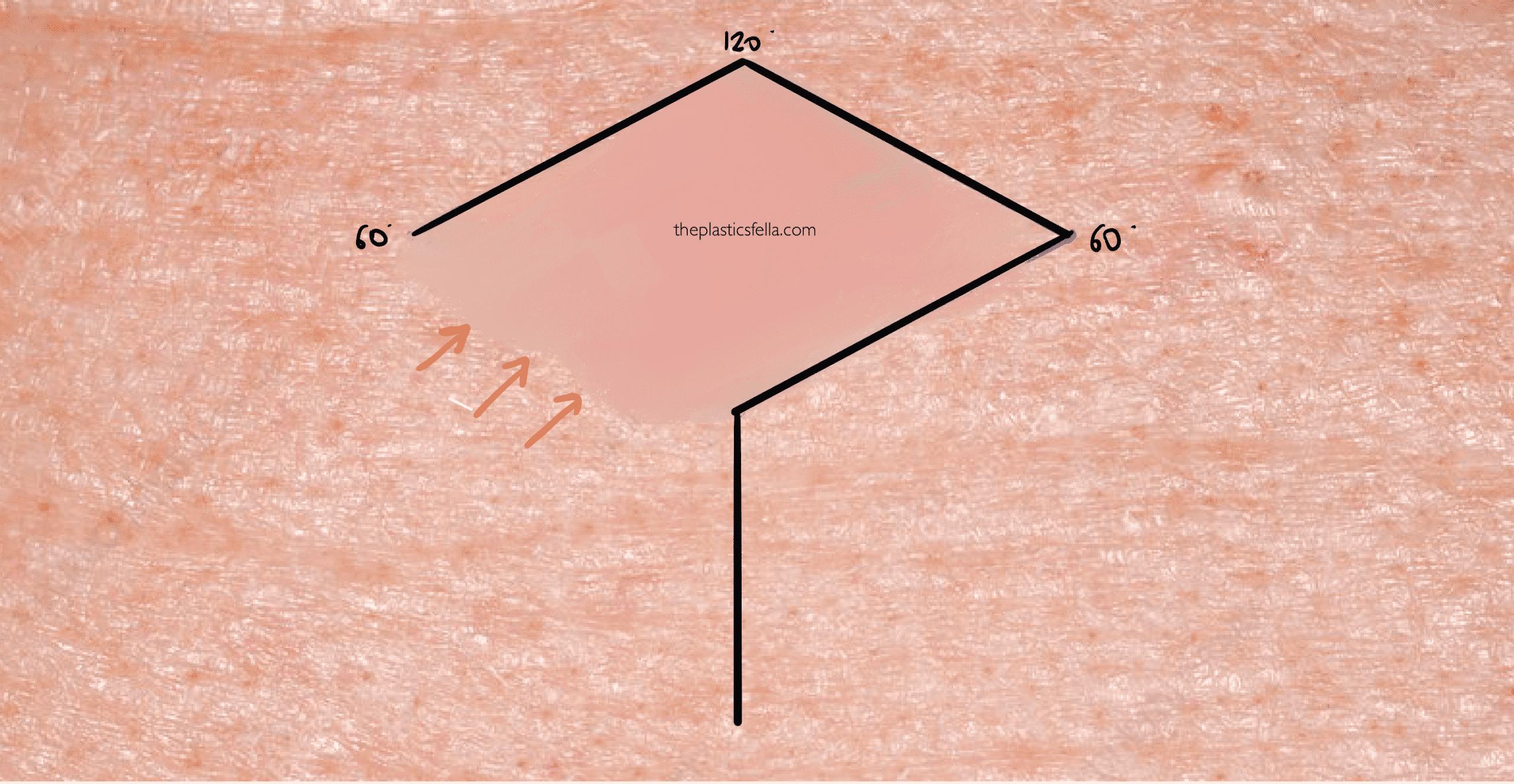 Drawing a rhomboid flap