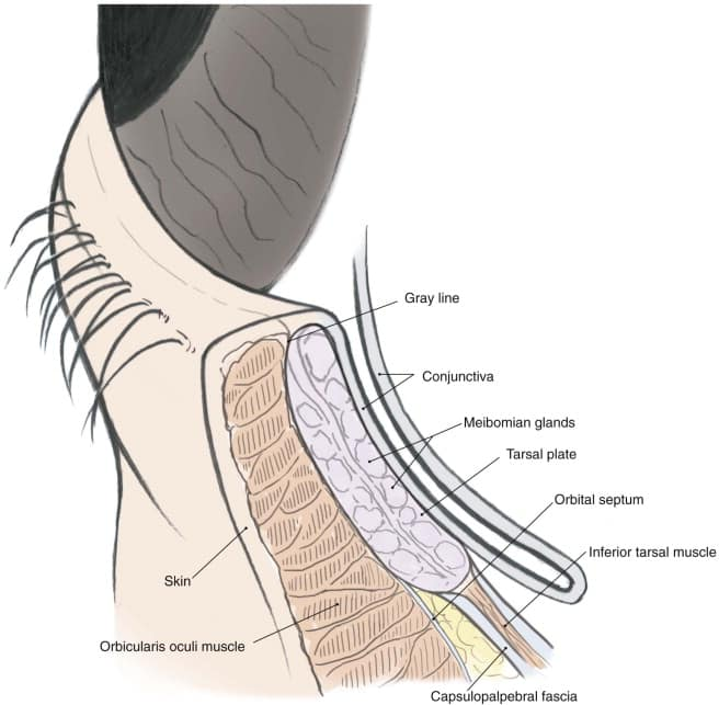 Overview of Lower Eyelid Anatomy