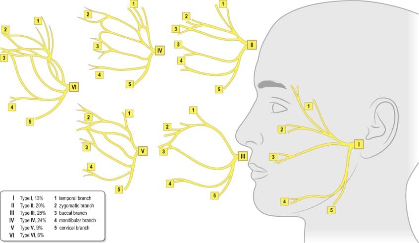 Areas of Communication between Frontal/Temporal Branch of Facial Nerves and other Nerves.