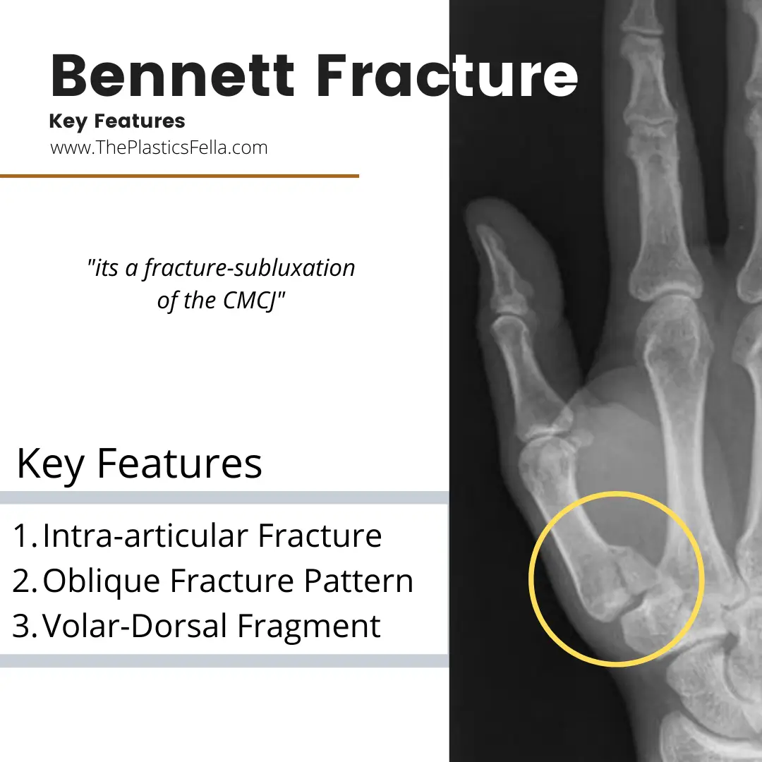 Features of a Bennett Fracture on X-Ray