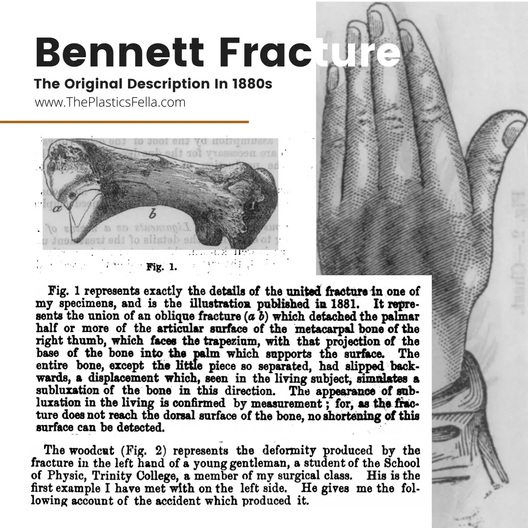 The original publication by EH Bennet in 1880s
