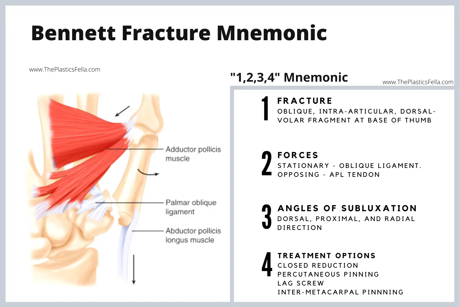 Bennet Fracture Mnemonic – 1 Fracture, 2 Forces, 3 Angles, 4 Treatments