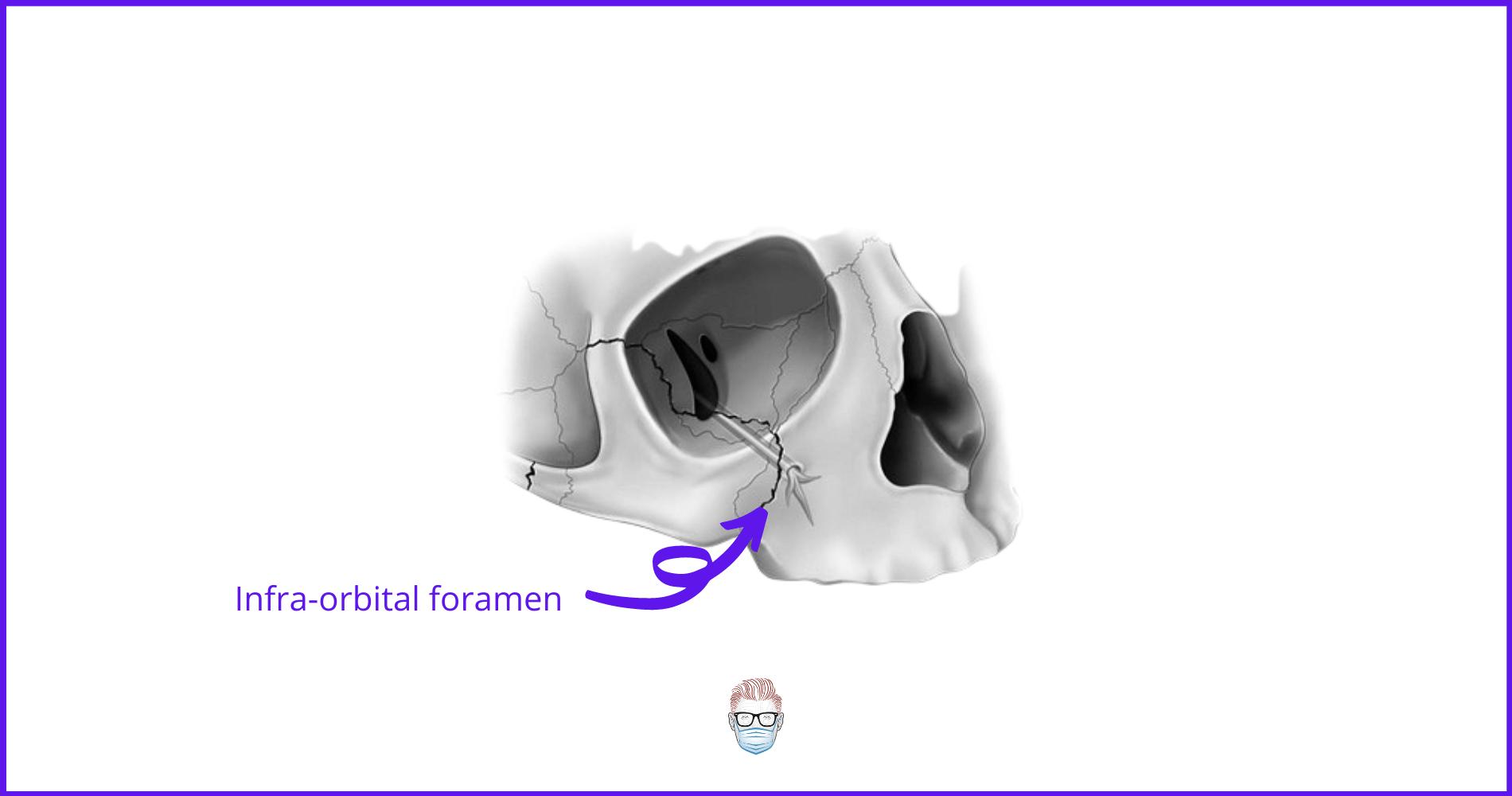 infraorbital nerve, foramen, zygoma, facial fractures, ZMC fractures