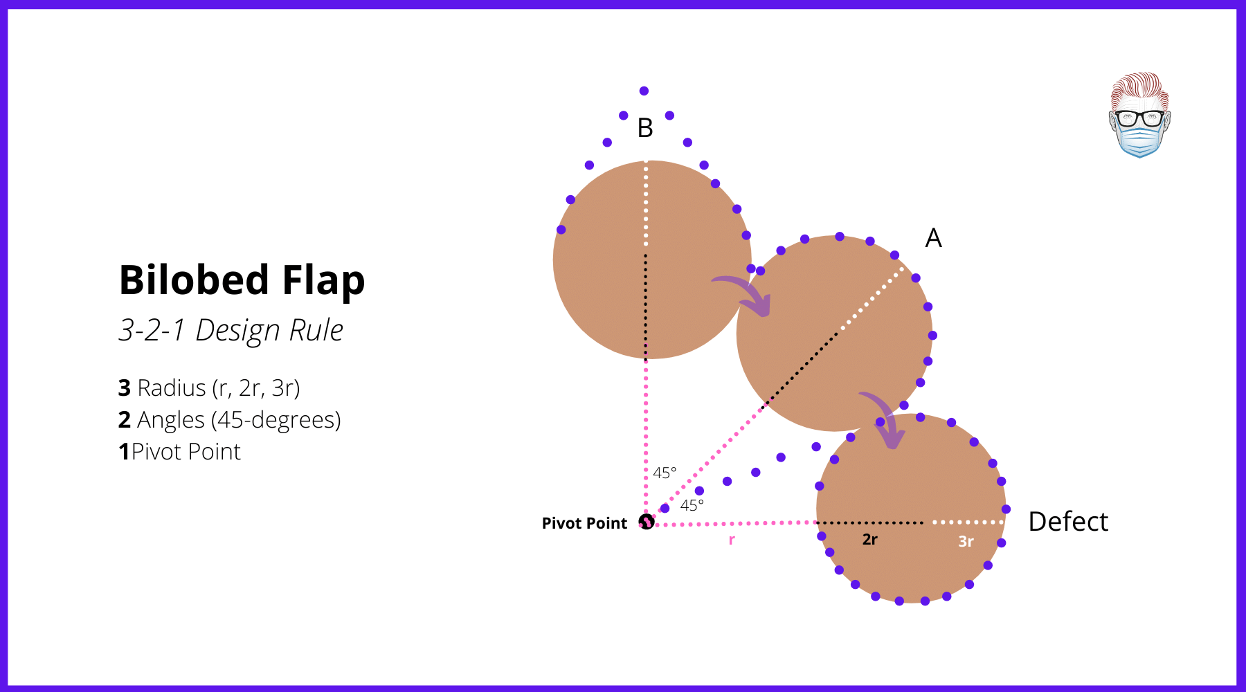 Design and Geometry of a Bilobed Flap around a Pivot Point (Zitelli Modificaton from Esser's flap) for nasal tip defects, pictures, medial canthus