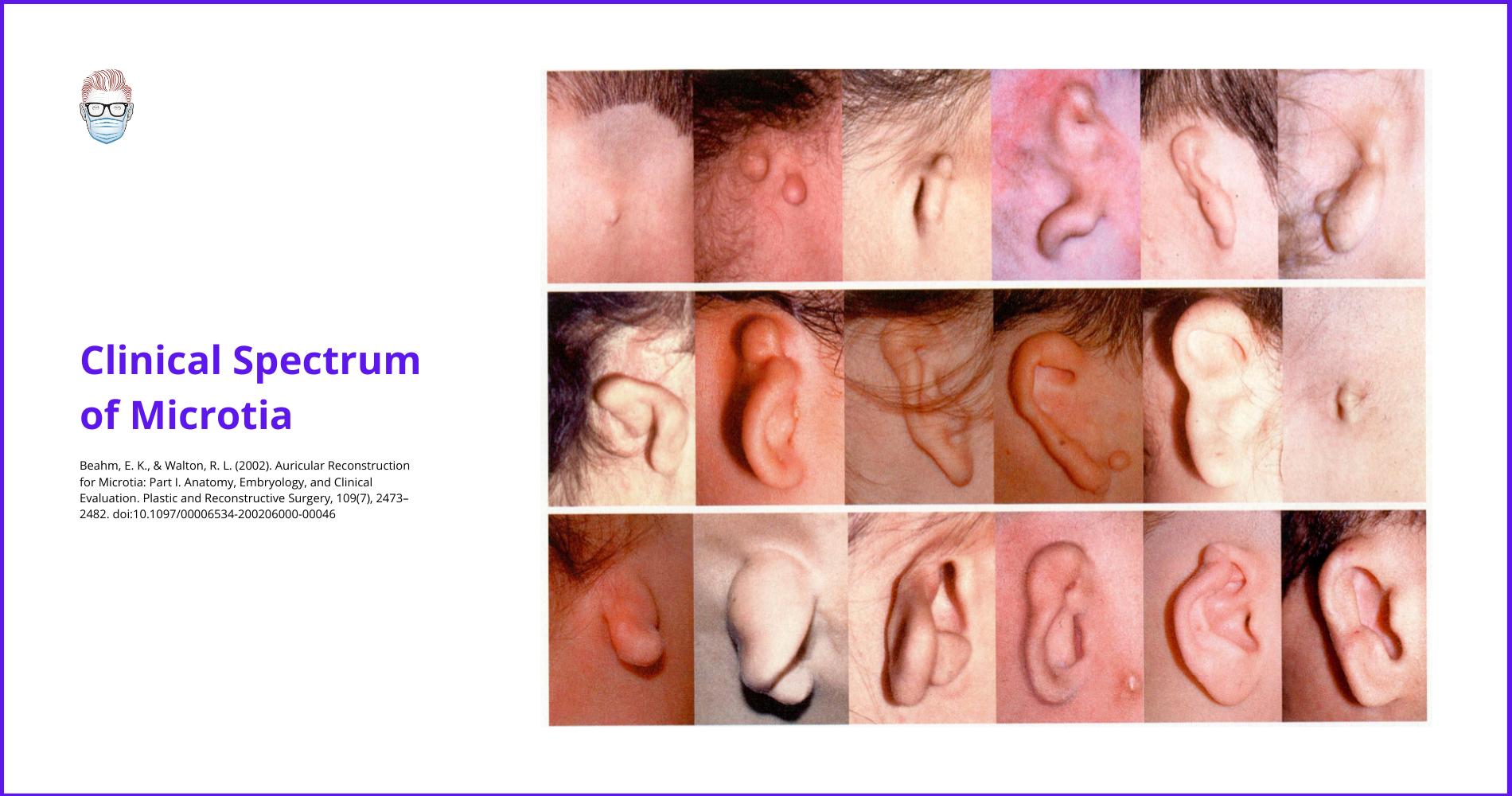 microtia, Tanzer, ear reconstruction, auricl, Brent, Nagata, surgery